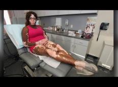 Nenavadna kožna bolezen